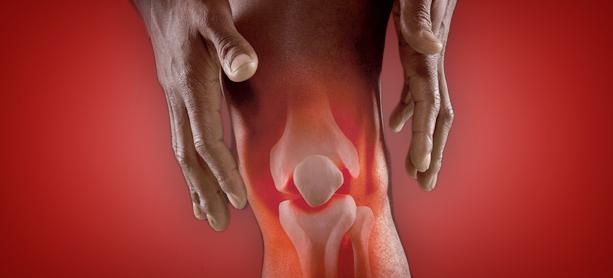 Протез синовиальной жидкости для коленного сустава препараты