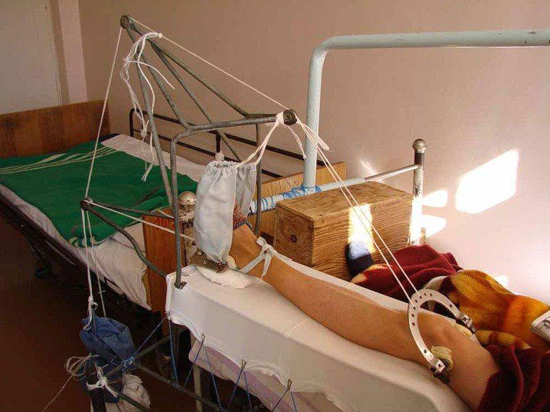 Перелом таза сколько заживает после операции осложнения. Опасность переломов таза и способы оказания первой помощи